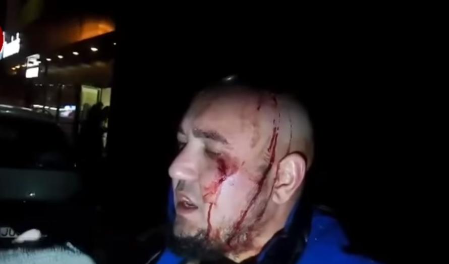 ВКиеве около пиццерии произошла драка с стрельбой