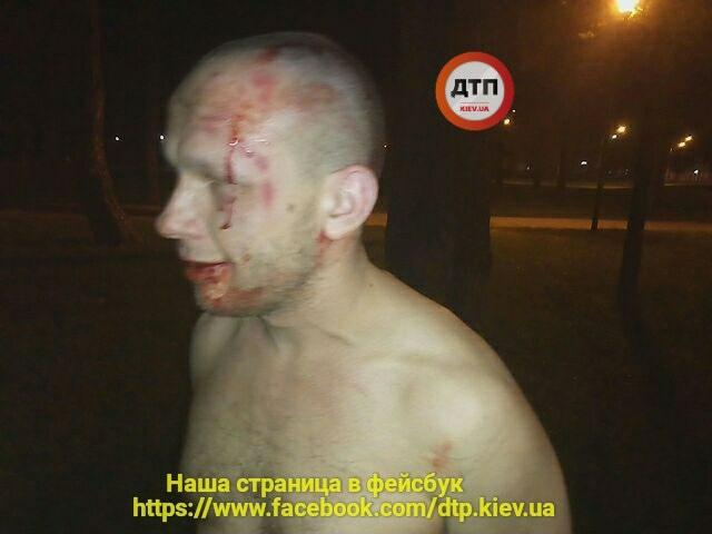Ночью в парке Киото в Киеве произошел взрыв: двое пострадавших (фото)