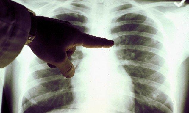 С начала года от пневмонии на Киевщине умерло 65 человек