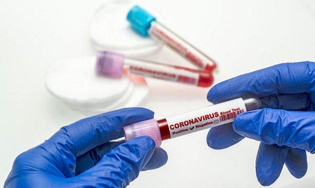 В Киеве самый высокий показатель тестирования на коронавирус в Украине, — Кличко