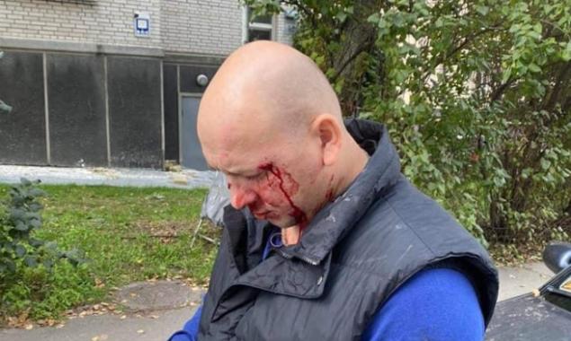 Полиция Киева установила личности двоих подозреваемых в избиении участника АТО